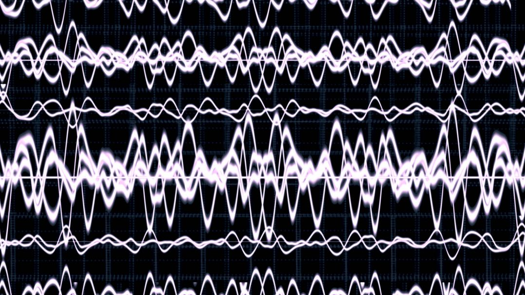 black and white display of brain waves during an epileptic seizure