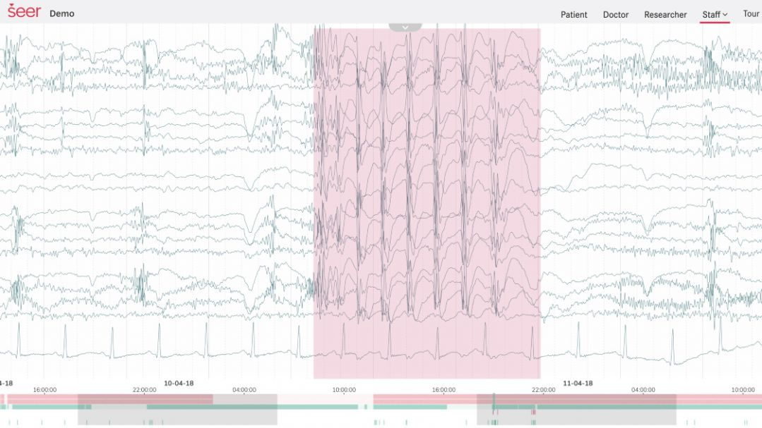 A EEG data visualisation of an epileptic seizure