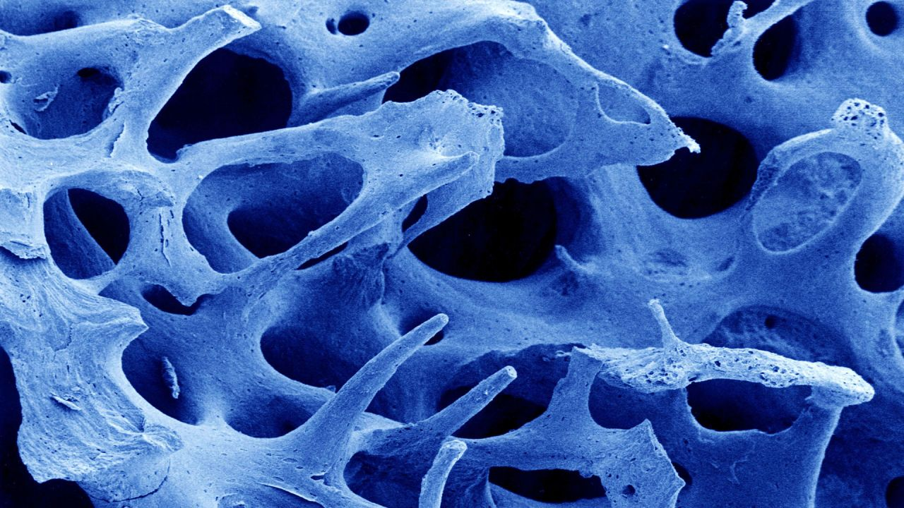 Blue tinted scanning electron microscope image of the inside of bone structure